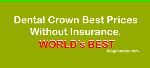 Dental Crown Best Prices Without Insurance.